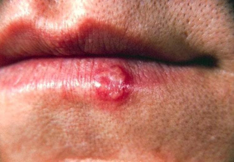 Photo Credit: Mouth herpes: CDC/ Dr. Herrmann